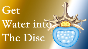 Johnson Chiropractic uses spinal manipulation and exercise to boost the diffusion of water into the disc which helps the health of the disc.