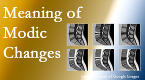 Johnson Chiropractic sees many back pain and neck pain patients who bring their MRIs with them to the office. Modic changes are often seen.