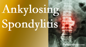 Ankylosing spondylitis is gently cared for by your Richmond chiropractor.