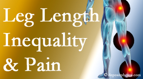 Johnson Chiropractic tests for leg length inequality as it is related to back, hip and knee pain issues.