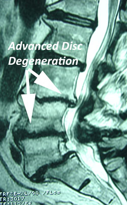 disc degeneration late