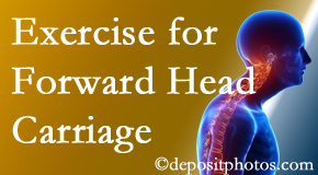 Richmond chiropractic treatment of forward head carriage is two-fold: manipulation and exercise.