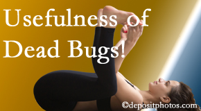 Johnson Chiropractic finds dead bugs quite useful in the healing process of Richmond back pain for many chiropractic patients.