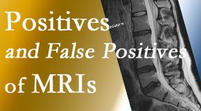 Johnson Chiropractic carefully chooses when and if MRI images are needed to guide the Richmond chiropractic treatment plan.